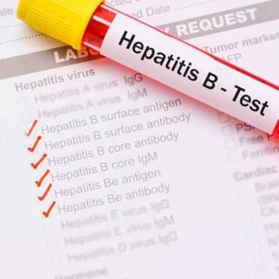 Расширенная диагностика гепатитов
