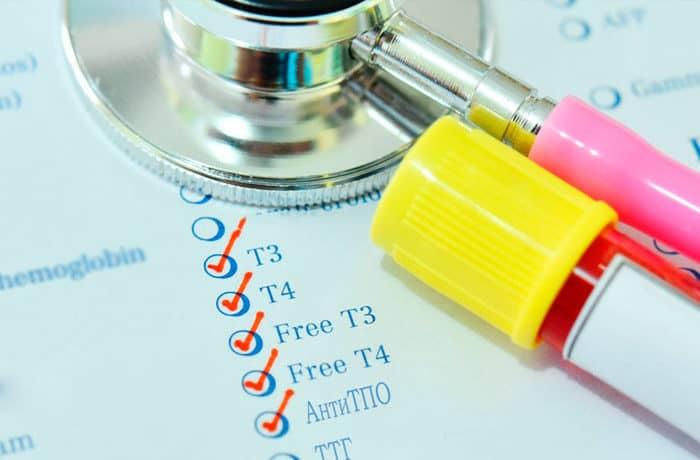 Діагностика щитовидної залози