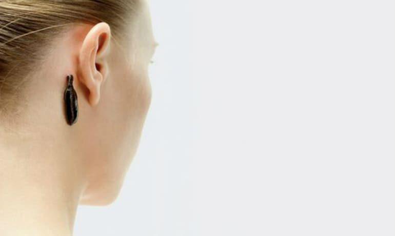 Лікування головного болю медичними п'явками